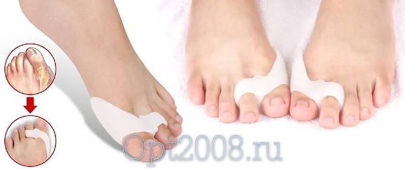 Удаление косточек на ногах лазером в москве цена и клиники